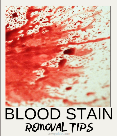 Blood Stain Removal Tips : The best way to get blood out of